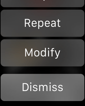 Notification actions in a WatchKit app